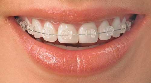 harga kawat gigi